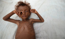 The war in Yemen must end, as famine spreads