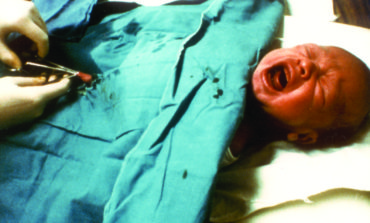 Male circumcision: Outdated tradition or necessary medical procedure?