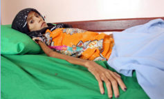 Starving girl shows impact of Yemen war, economic collapse