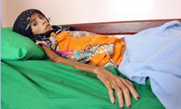 Starving girl shows impact of Yemen war, economic collapse