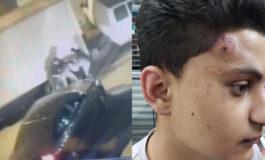 Cops under investigation for brutal attack on NJ Arab American teen
