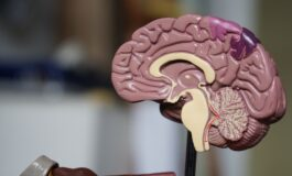 Beaumont researchers perform breakthrough study for early prediction of Alzheimer's